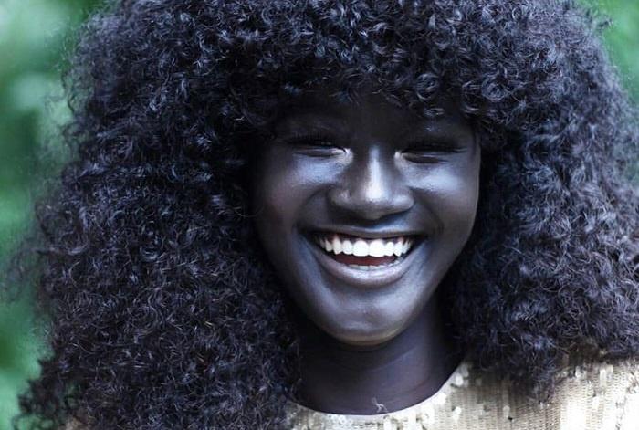 Rengeteget csúfolták extrém sötét bőre miatt, ma viszont az egész internet imádja